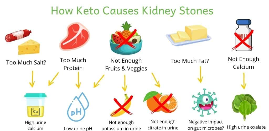 Infographic showing how components of keto diet can cause kidney stones. Too much salt (high urine calcium), too much protein (high urine calcium, low urine pH), not enough fruits and vegetables (low urine pH, low urine potassium and citrate), possibly too much fat (and possible negative impact on gut microbiome) and not enough calcium (causes high urine oxalate)